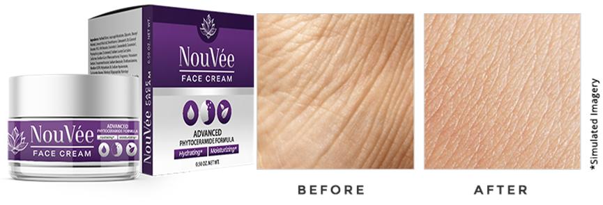 Nouvee Anti-aging Cream